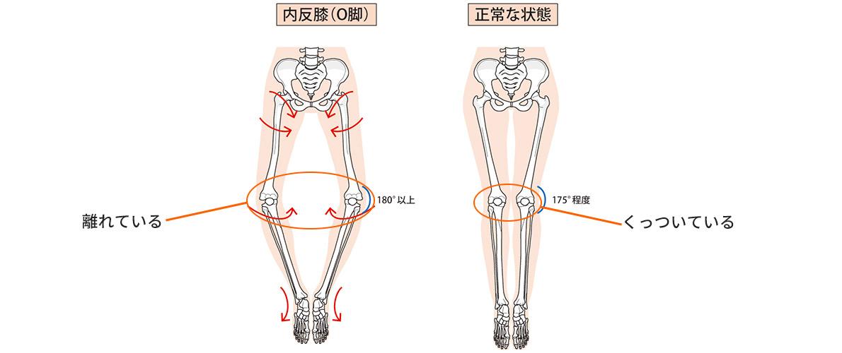 2つの骨のバランスが崩れるとクッションである軟骨がすり減る!